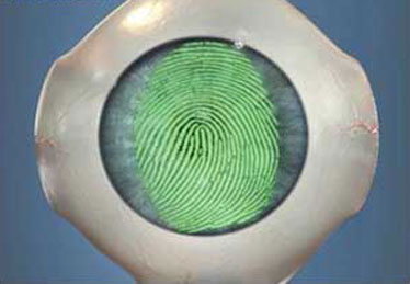 cirurgia-correcao-olhos-laser