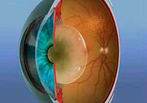 Embaçamento da lente do olho causando redução da visão