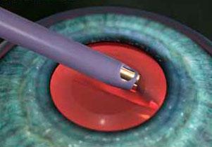 cirurgia catarata manaus